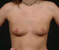 Dianne Before Breast Augmentation - Frontal View