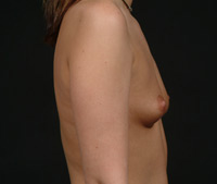 Dianne Before Breast Augmentation - Side View